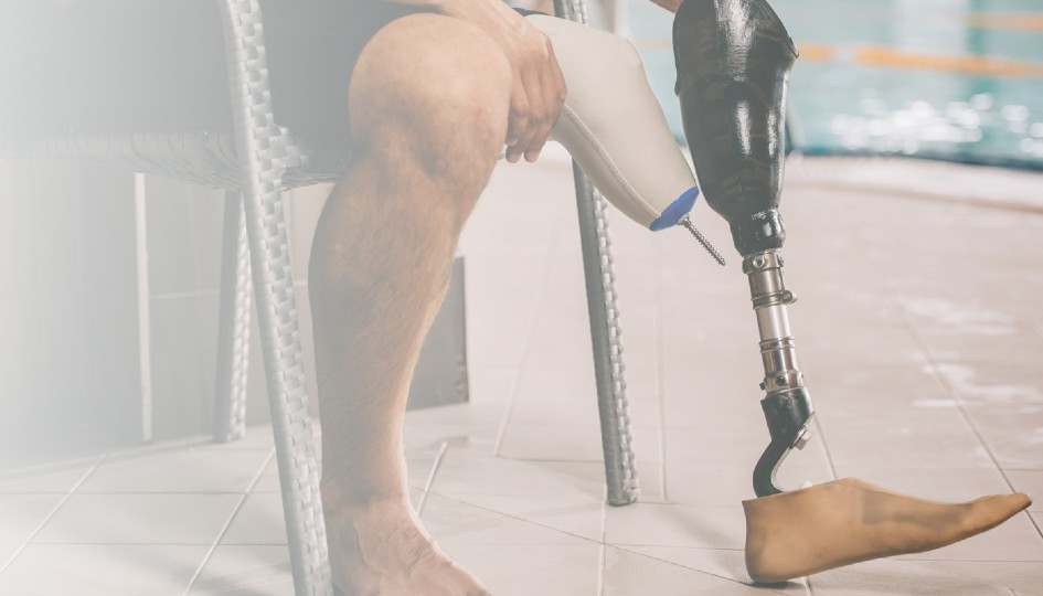 Amputee with a prosthetic leg.